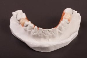 Partial denture on a dental mold