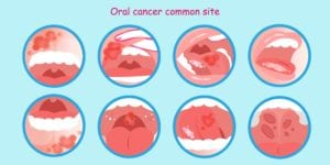 Diagram showing various oral cancer locations