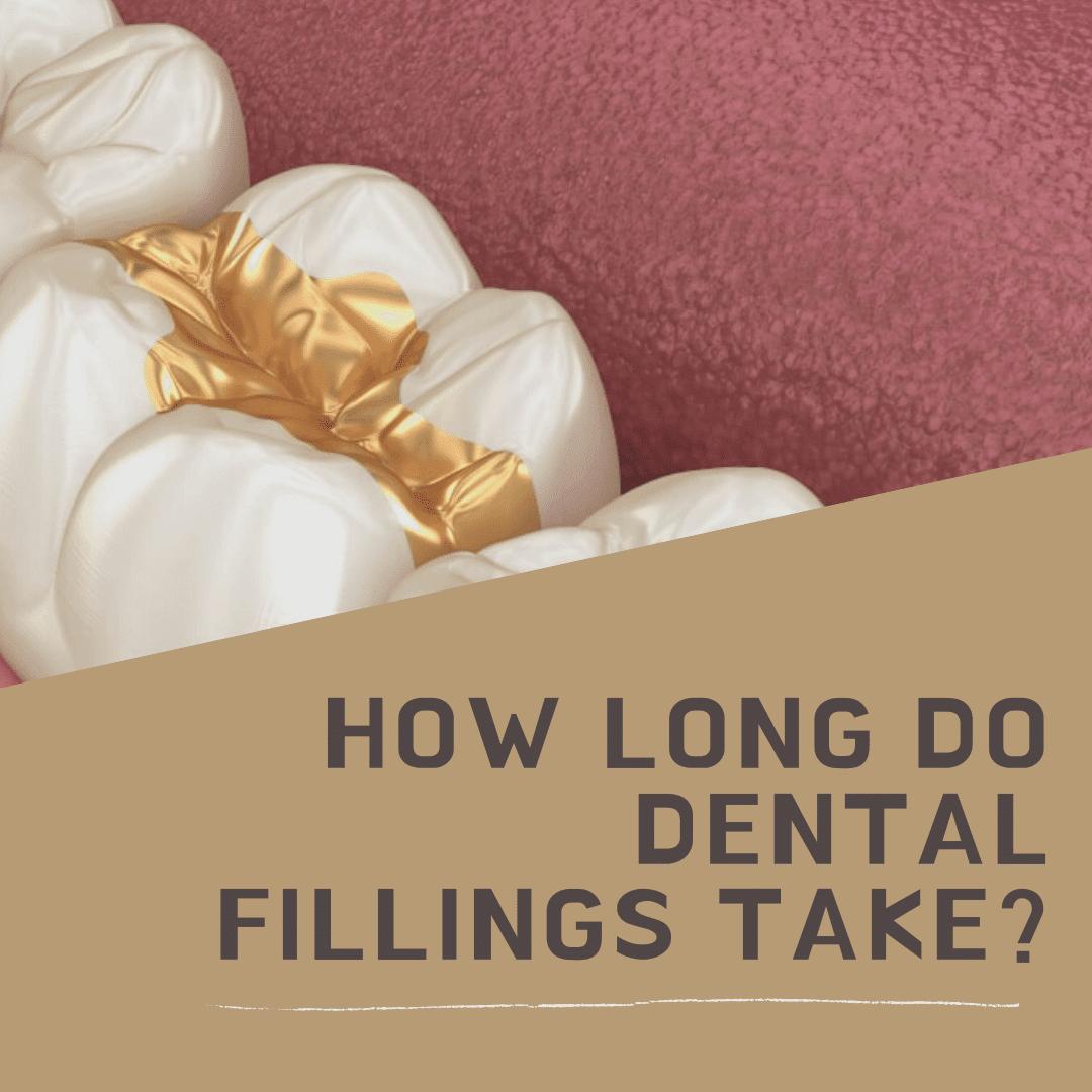 How Long Do Dental Fillings Take?