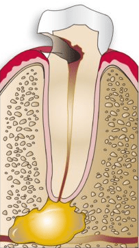 Severely decayed tooth diagram
