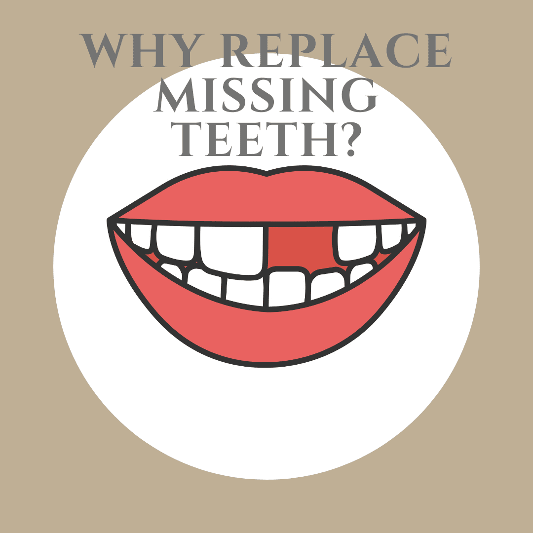 Why Replace Missing Teeth