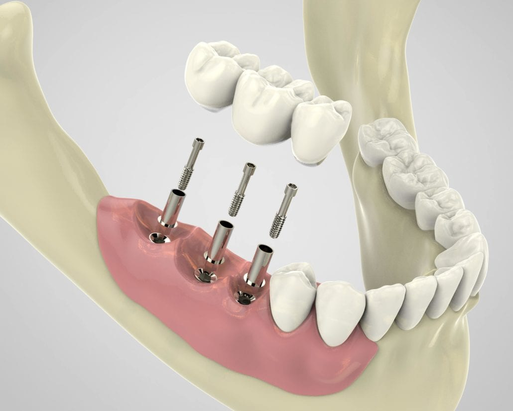 three dental implants shown towards the back of the mouth